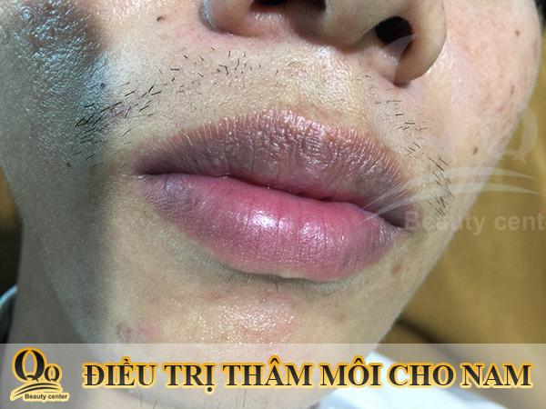 Chữa trị hạt fordyce sẩn ở da môi - Thẩm mỹ viện Thanh Quỳnh uy tín số 1